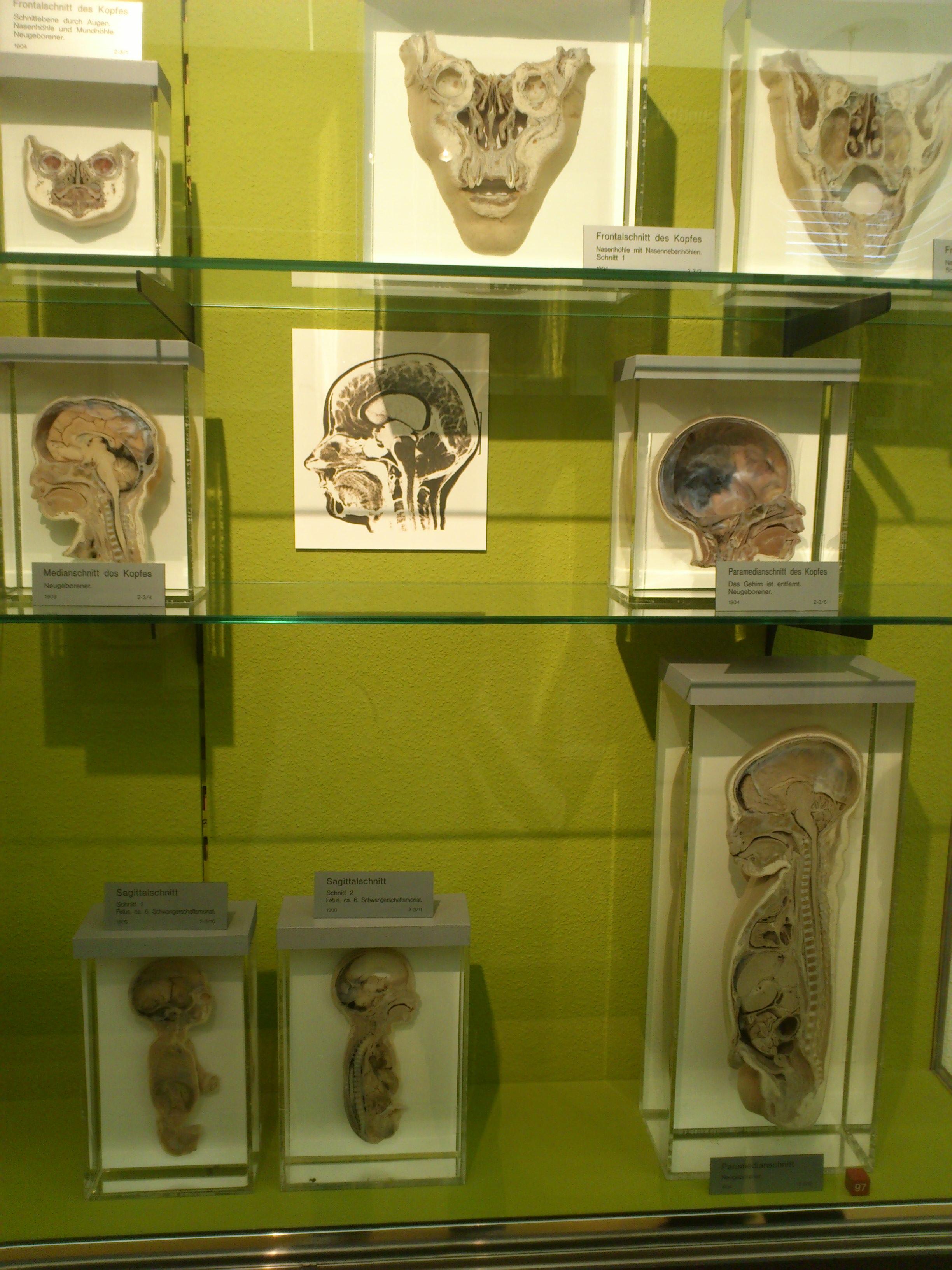 Musée de l'anatomie - Bâle - Suisse